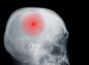 Brain injury medical negligence compensation claims guide