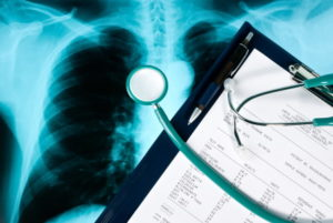Missed fracture medical negligence
